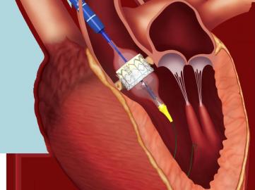 Implantation de valve transcatheter par voie transaortique - Registre ROUTE